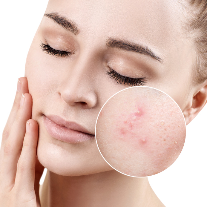 woman-before-with-acne-after-mineral-makeup-coverage.jpg